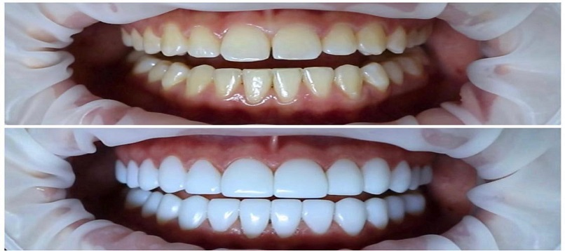 Teeth Whitening Clinic Edison