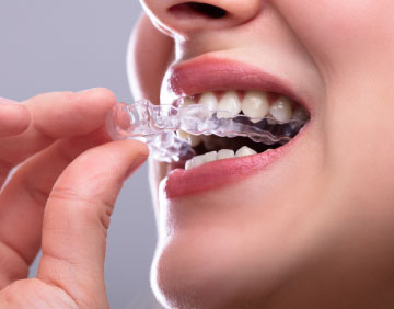 Dental Oral Appliance Sleep Apnea